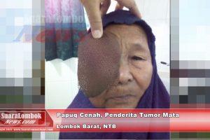 Penderita Tumor Mata Kesakitan, Dikes Lombok Barat Tutup Mata